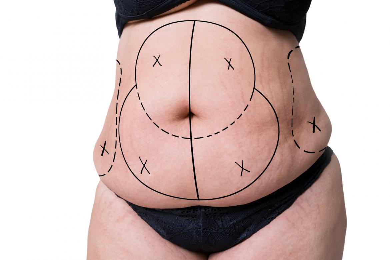 Populārākie mīti par tauku atsūkšanu