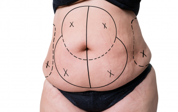 paciente pirms tauku atsūkšanas